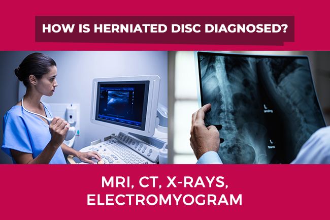 Herniated Disc Diagnosis