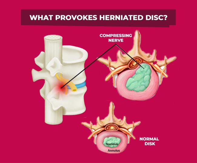 Reason for Herniated Disc